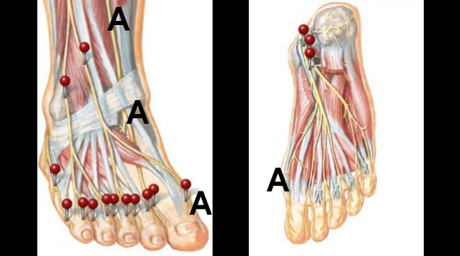 Pain In Half The Big Toe By Dr Steven J Dolgoff
