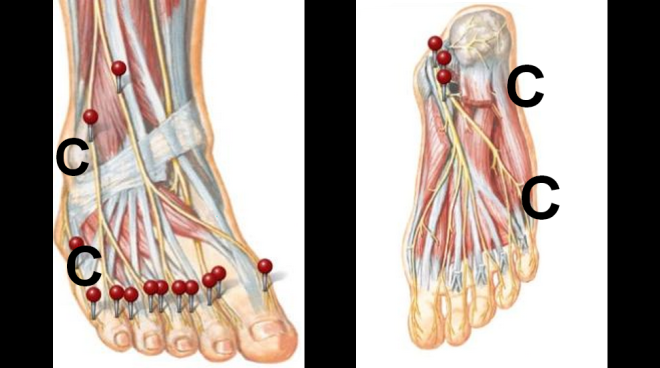 Pain By The Little Toe Outside Of The Foot Heel By Dr Steven J Dolgoff
