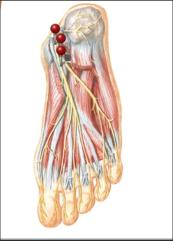 what causes foot neuropathy