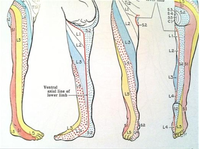 DERMATOME CHART FOR PERIPHERAL NEUROPATHY BY DR STEVEN DOLGOFF